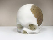 tailor-made-3D-printed-skull-implant