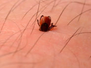 Deer-tick-embedded-in-human-leg