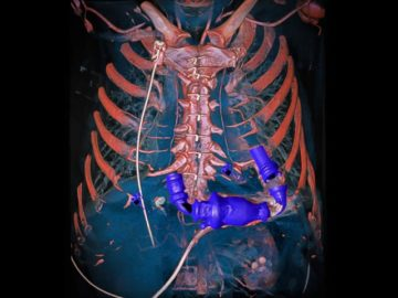 Mechanical-heart-pump-in-the-thorax-Wellcome-Image-Awards-2014