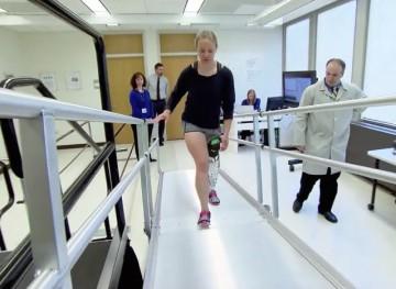Prosthetic leg breakthrough
