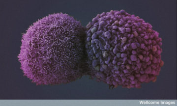 Cancer cell by Wellcome Images