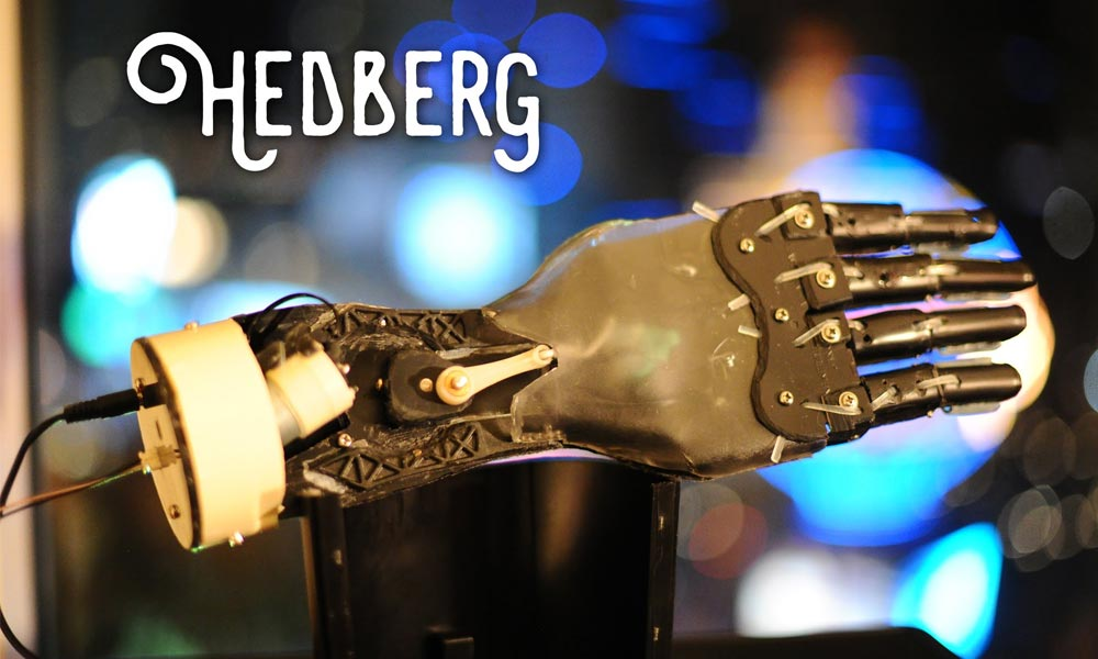 Watch as YouTuber creates bionic hand using a coffee machine
